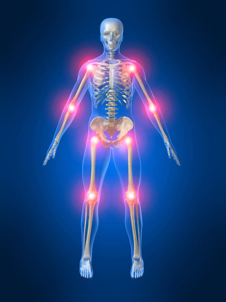 Остеоартроз – это патологическое состояние суставов ( тазобедренного,коленного, плечевого, кистей, стопы), характеризующееся дегенерацией их хрящевой ткани и подлежащей кости. Суставная хрящевая ткань разрушается и истончается, приводя к выраженной боли, отечности и деформации сустава. Заболевание распространено среди людей зрелого и особенно пожилого возраста.